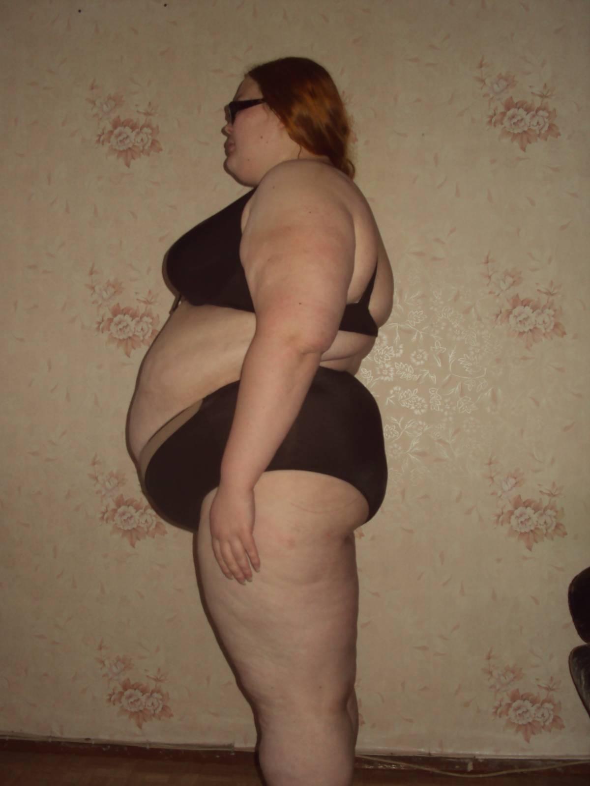 У девочке отвисли груди фото 6 фотография